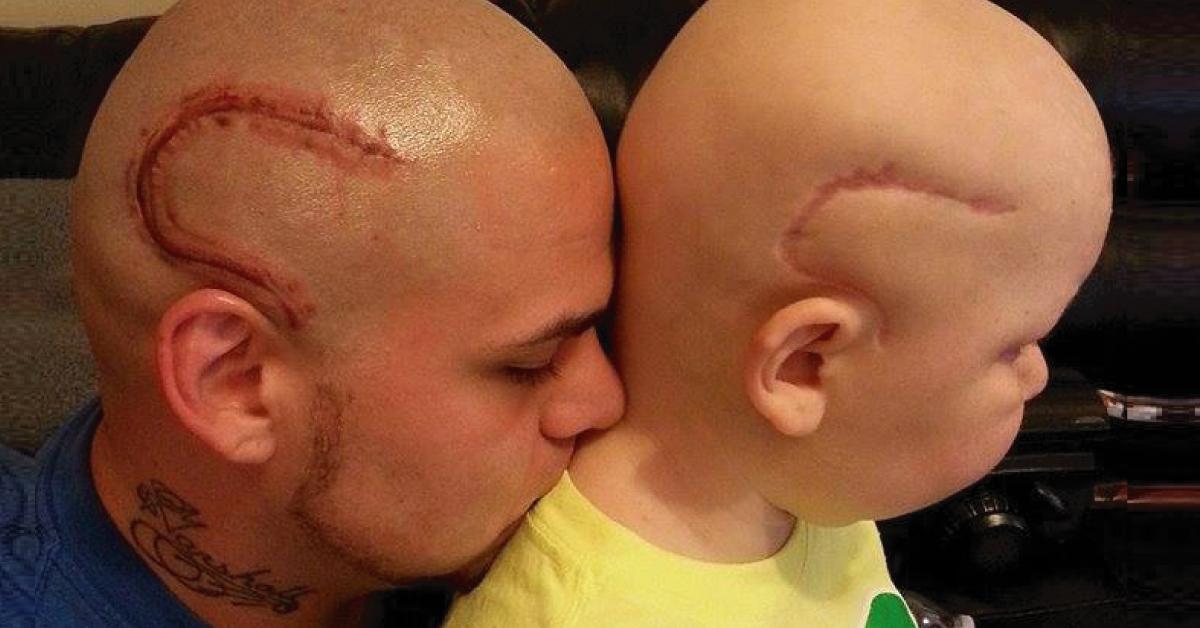 Recuerdas la historia del padre que se tatuó en la cabeza una cicatriz como l..