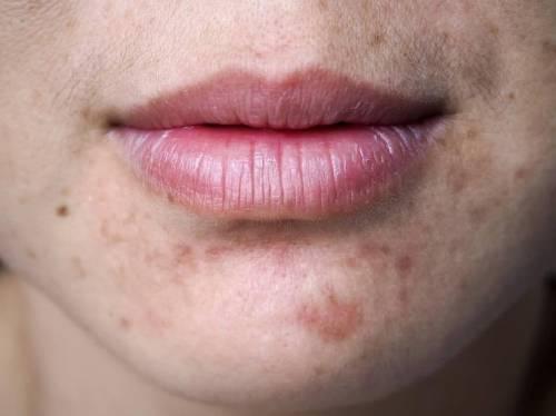 Secreto japonés para eliminar las manchas del rostro