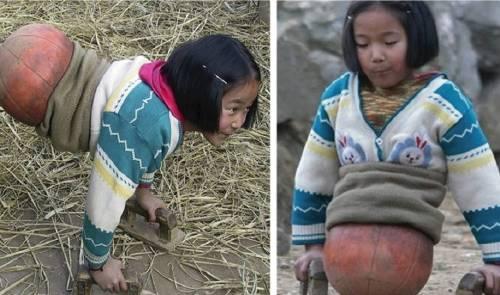"""Así se ve """"la niña pelota"""" después de 11 años - fue abandonada pero ahora .."""