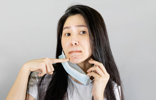 Surge un nuevo acné causado por el cubrebocas