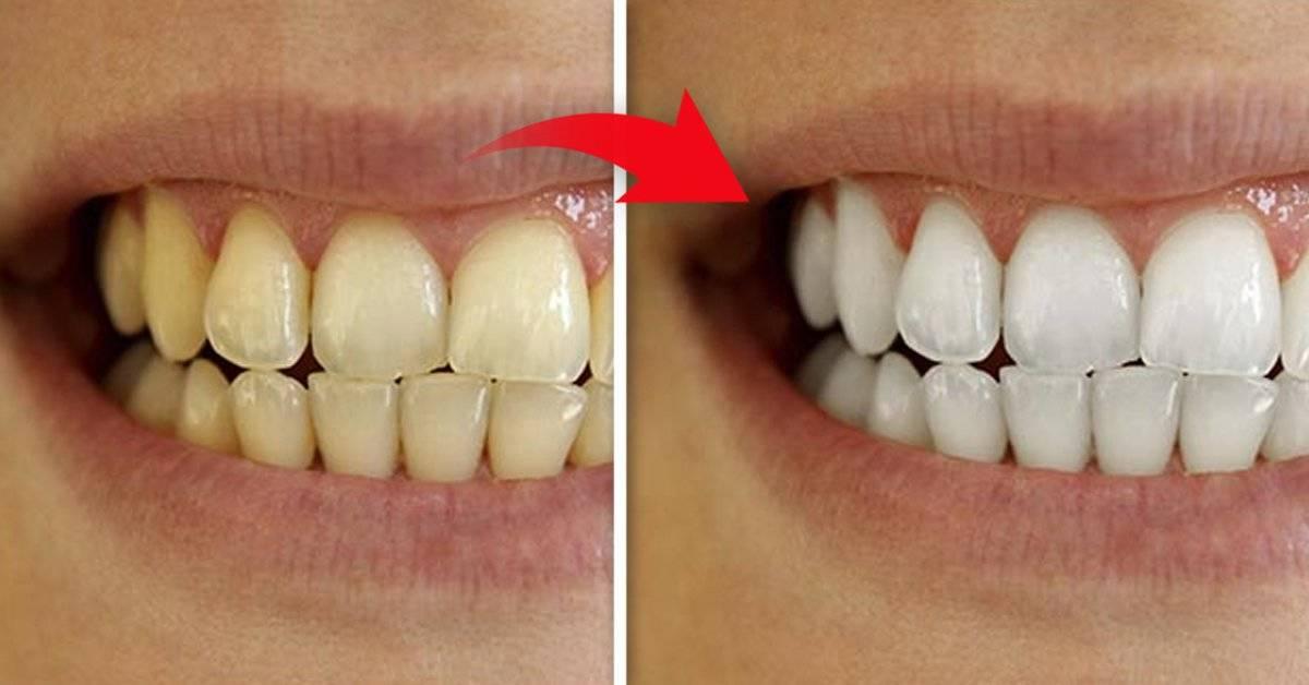 ¡Dos recetas sencillas y naturales que dejarán tus dientes como nuevos!