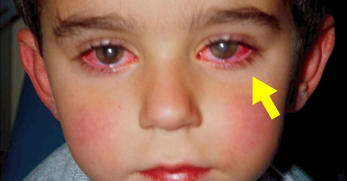 """Este pequeño """"juguete"""" hizo que un niño perdiera  gran parte de su visión"""