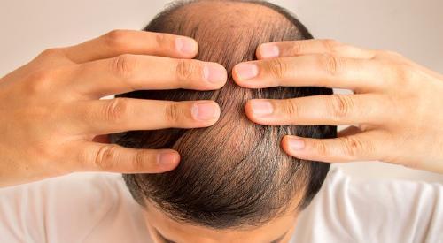 Pérdida de cabello, un nuevo posible síntoma del covid-19