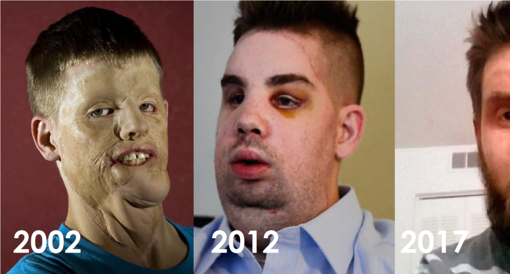 La gente se reía de él, pero en 2012 fue operado y actualmente luce irrecono..