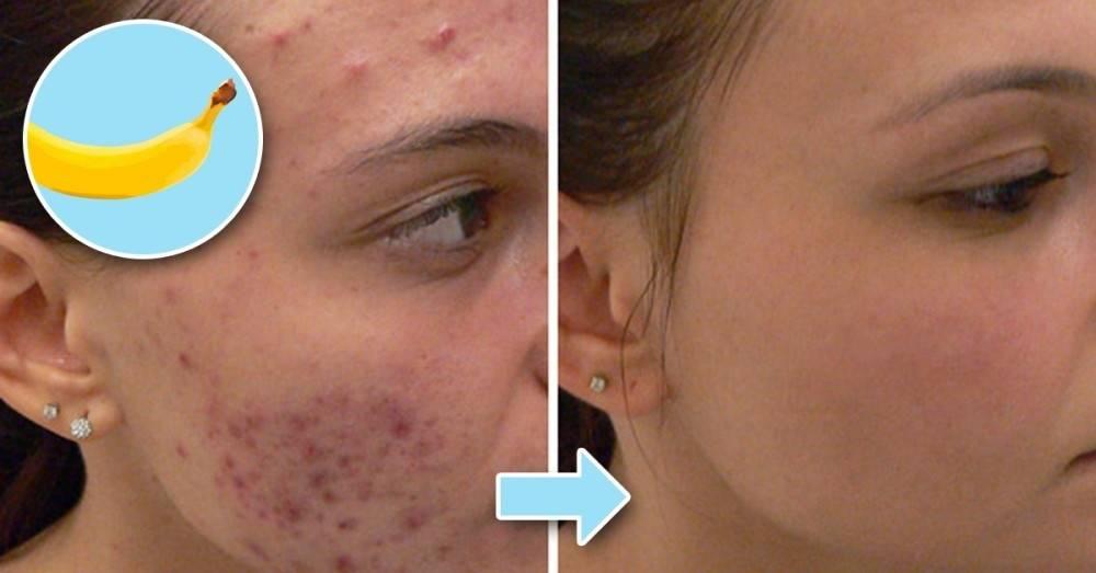 Cómo quitar manchas, acné e hinchazón de la piel con cáscaras de banana