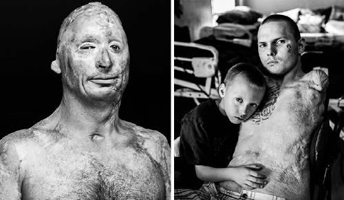 Así es como se ven los veteranos después de años de guerra - impactantes fo..