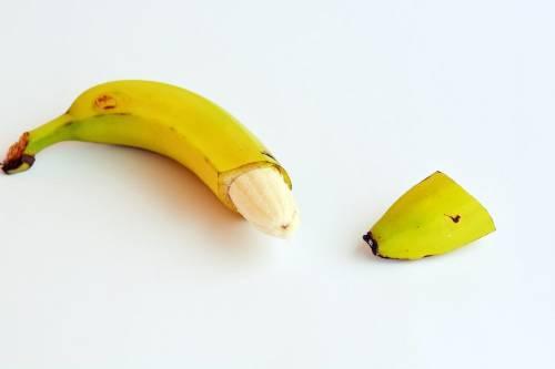 Circuncisión: ¿hacerla o no hacerla?