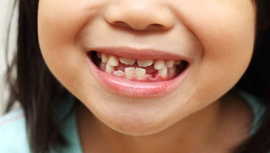 ¿Guardar los dientes de leche puede salvar la vida de tu hijo?