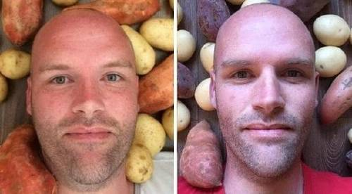 Comió solo papas durante un año y nadie se esperaba lo que pasó después
