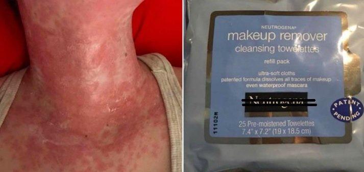 La piel de una joven fue completamente dañada por unas toallitas desmaquillantes