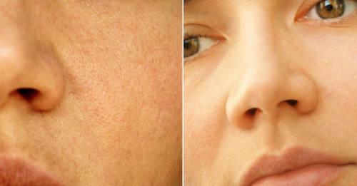 Poros dilatados: consejos y remedios para evitarlos
