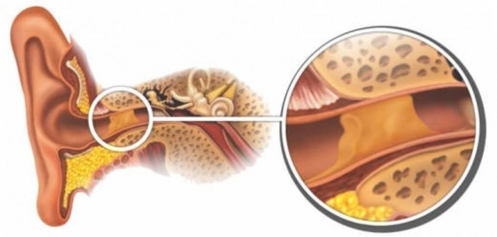Cómo eliminar el exceso de cera de los oídos de forma casera y natural