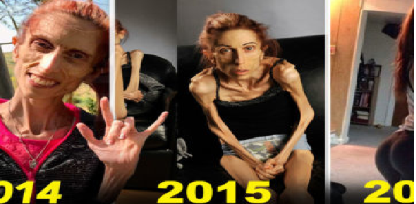 Así luce hoy la mujer que sufrió el peor caso de anorexia del mundo