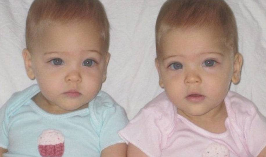 """Estas gemelas idénticas ya crecieron y han sido proclamadas """"las más hermosa.."""