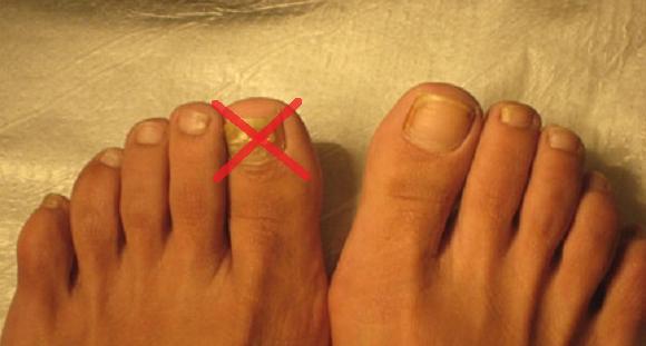 Estas son las causas menos conocidas de hongos en las uñas