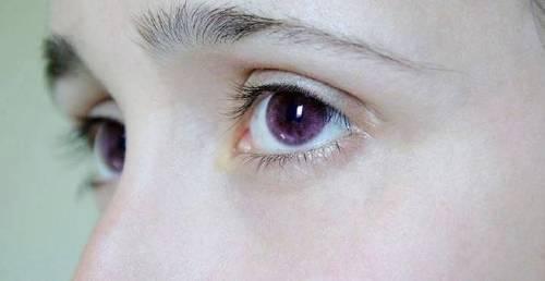 Génesis de alexandría. la mutación de los ojos color violeta.