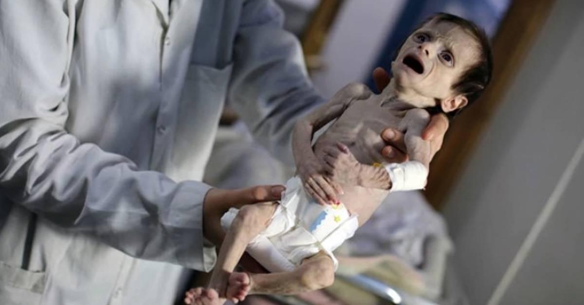 Esta niña murió en siria a causa de la guerra y nos muestra lo que muchos ig..