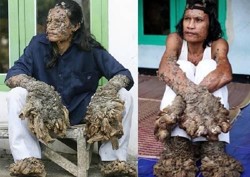 La enfermedad que convierte en árboles a las personas.