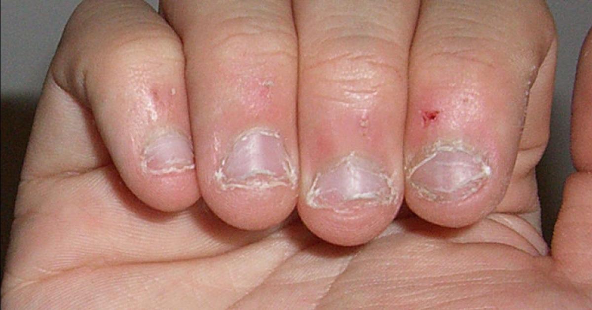 Morderse las uñas es una característica principal de este tipo de personalidad