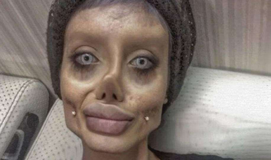 Esta mujer de irán se hizo 50 cirugías para parecerse a angelina jolie