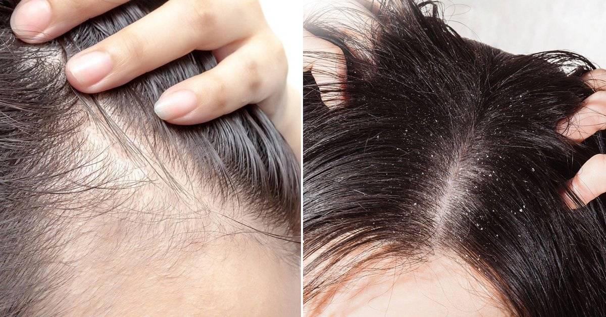 El significado emocional de los problemas del cabello según la Biodescodificación