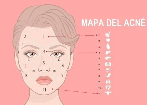 Dime dónde tienes el acné y te diré qué órgano te falla
