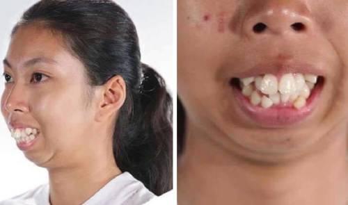 Mujer gana cirugía facial en programa de tv y quedó irreconocible