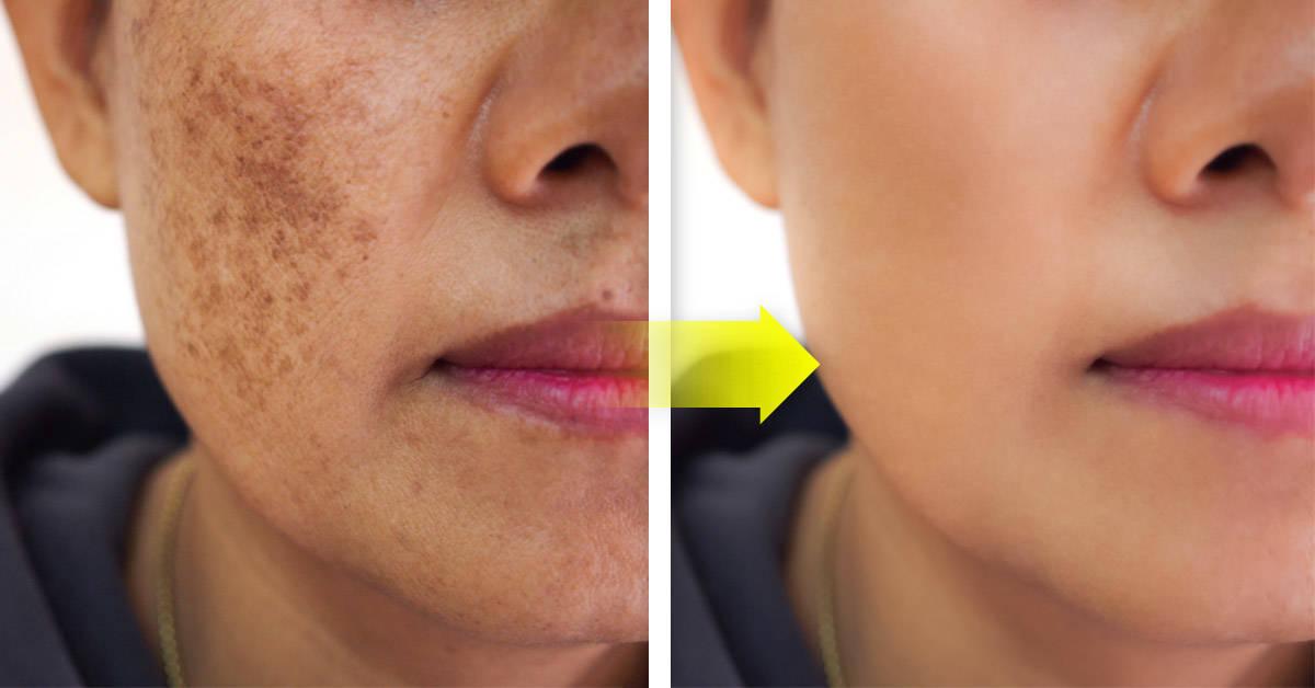Mascarilla de limón y perejil para eliminar las manchas del rostro
